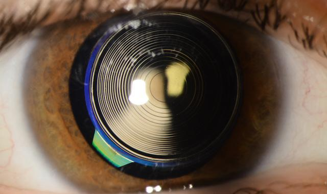 J.K.-Should-I-have-a-multifocal-intraocular-lens-implant-for-my-cataract-surgery.jpg
